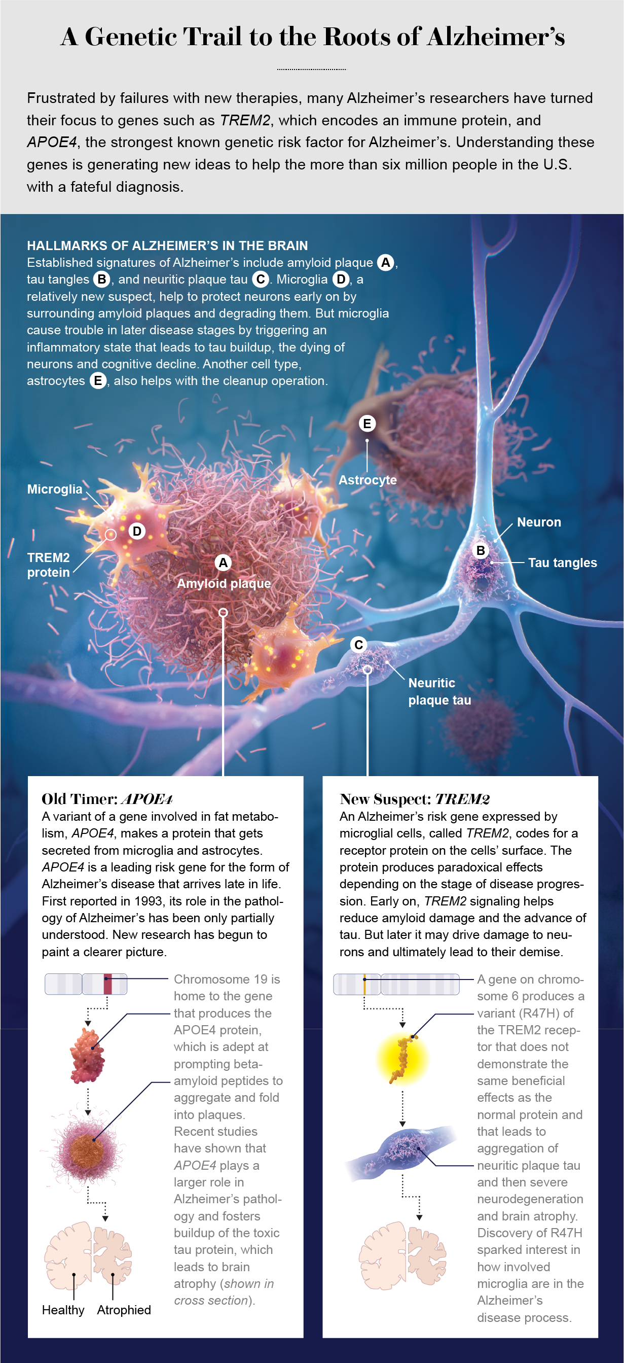 Hallmarks of Alzheimer's: tau tangles, neuritic plaque tau, amyloid plaques and microglia clusters.